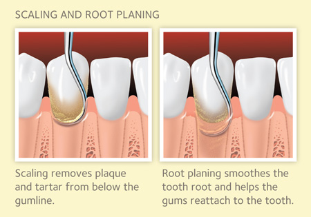 periodontal therapy SRP